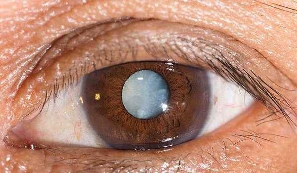 Катаракта лечение народными средствами, причины и симптомы при катаракте глаза
