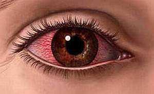 Аллергический конъюнктивит: лечение глаз и симптомыу взрослых