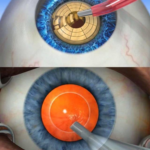 Когда делать операцию на катаракту? Нужно узнать лучше у врача про удаление катаракты