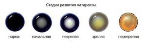 Катаракта глаза причины возникновения, из-за чего развивается у взрослых