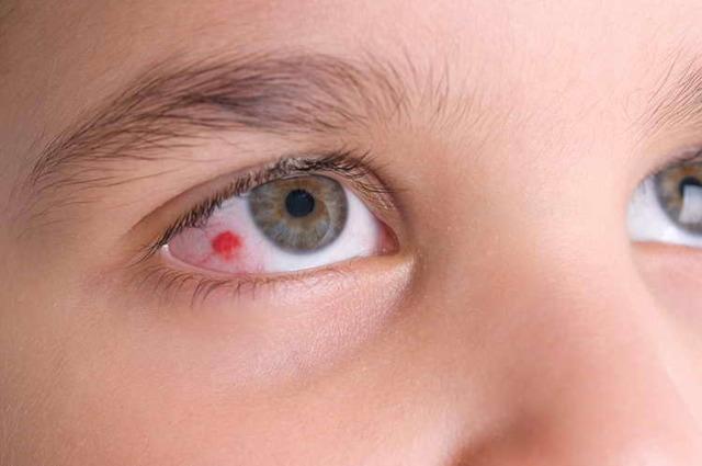 Лопнул сосуд в глазу: что делать в домашних условиях с капилляром?