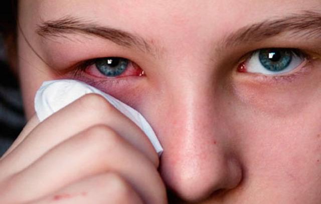 Лопнул сосуд в глазу у ребенка, что делать если лопаются сосудики у грудничка