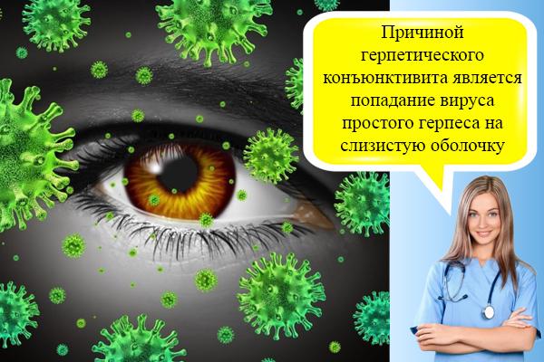 Герпетический конъюнктивит: лечение и симптомы