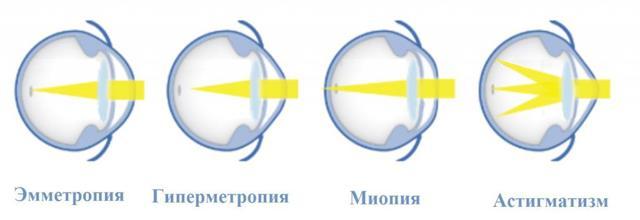 Нарушение зрения, ухудшение, причины плохого зрения