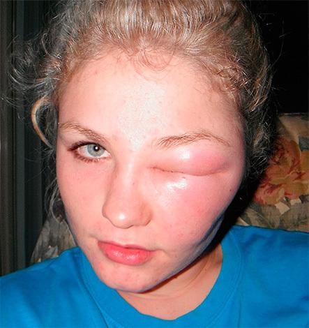 Мошка укусила в глаз, что делать и как снять отек?