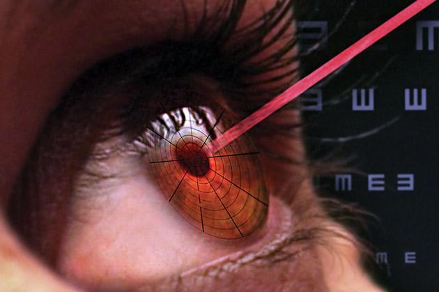 Последствия после лазерной коррекции зрения - ухудшение и осложнения, почему упало зрение и появилась мутность в глазах