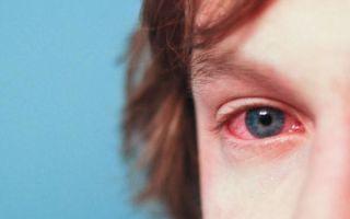 Аллергический конъюнктивит у детей, симптомы и лечение у ребенка
