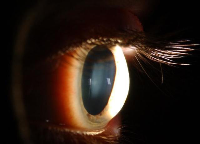 Мерцание в глазах, блики, вспышки, зайчики - причины