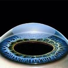 Катаракта: операция, противопоказания после удаления катаракты глаза