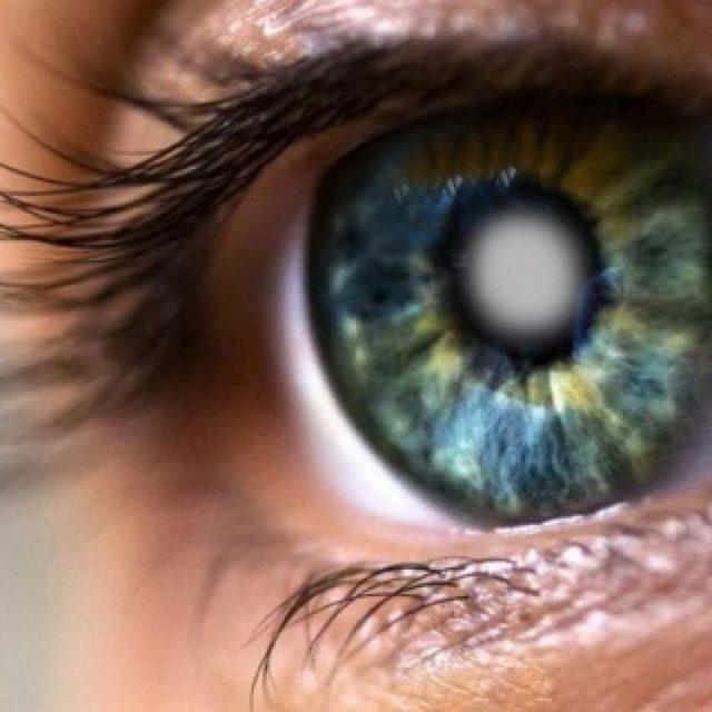 Катаракта глаза - что это такое?