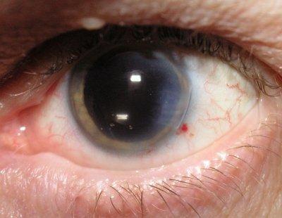 Врожденная катаракта у взрослых: причины и лечение