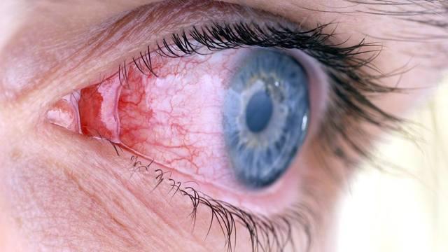 Мутное зрение - причины помутнения и затуманивания зрения, размытое изображение в одном глазу