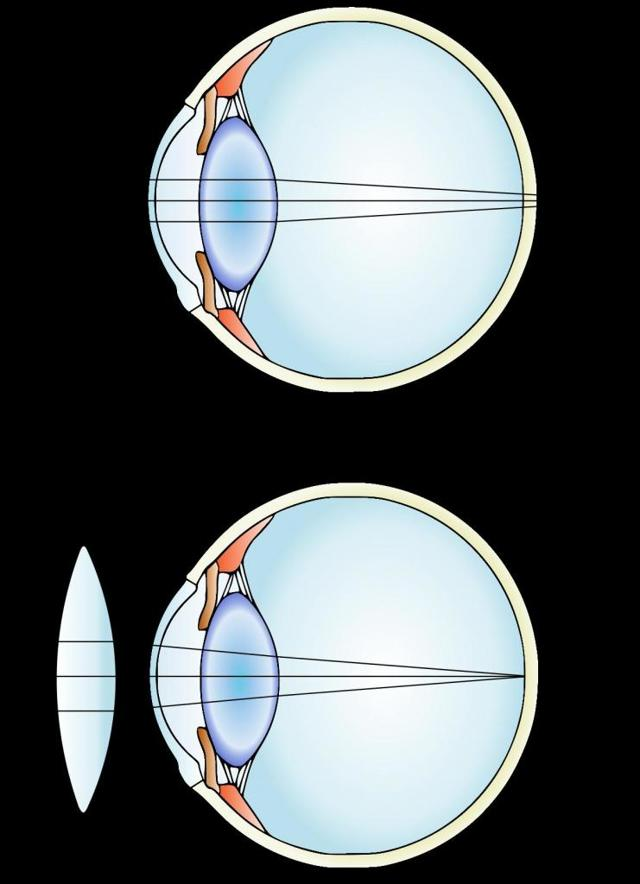 При помощи какой линзы корректируют дальнозоркость