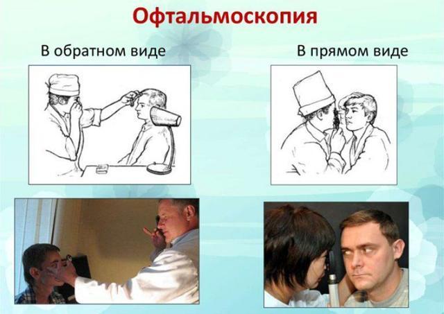 Врожденная катаракта у детей, причины и операция точечной катаракты у новорожденных