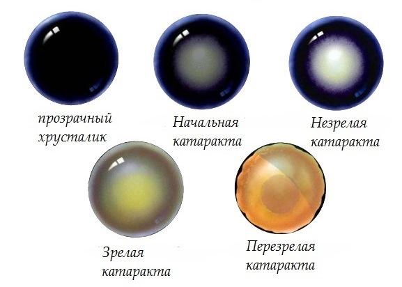 Катаракта: симптомы и признаки катаракты глаза на ранней стадии