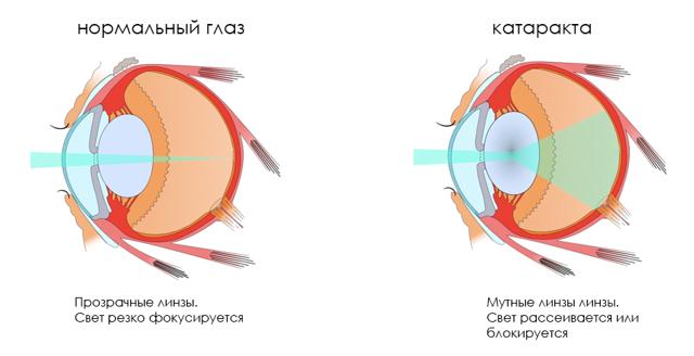 Чем опасна катаракта глаза: факторы риска и последствия