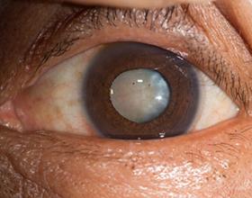 Катаракта: операция пожилого человека, последствия удаления катаракты для пенсионеров