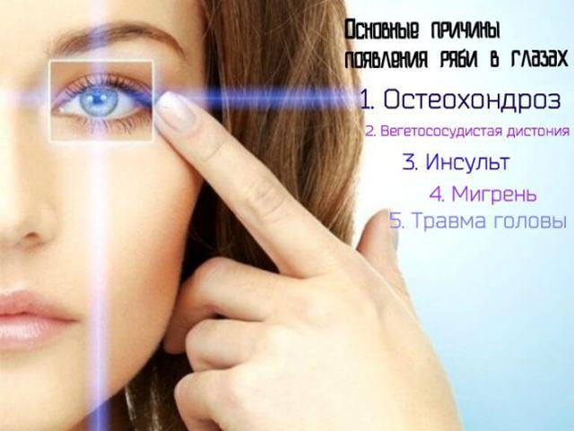 Рябит в глазах: что это значит? Причины ряби, что делать с глазами?