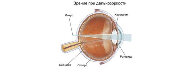 Нужно ли постоянно носить очки при дальнозоркости? Подбор очков