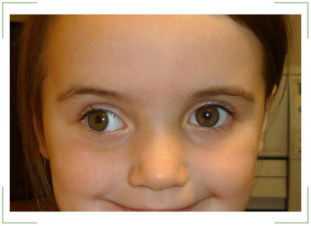 Упражнения от косоглазия - гимнастика для глаз при косоглазии у взрослых и детей