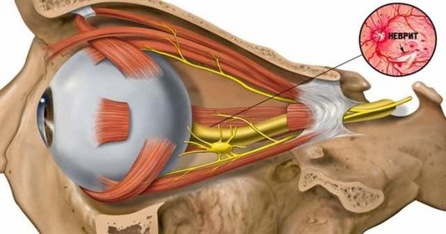 Неврит зрительного нерва, воспаление глазного нерва симптомы и лечение
