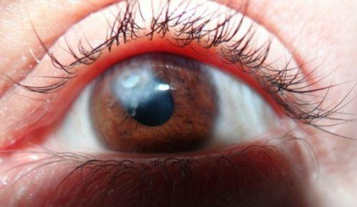 Бельмо на глазу, помутнение роговицы глаза: причины и лечение