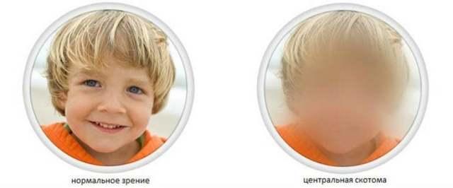 Скотома глаза: что это такое? Выпадение полей зрения: причины и лечение у детей