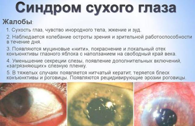 Почему падает зрение после 40 лет, возрастные изменения зрения - ухудшение