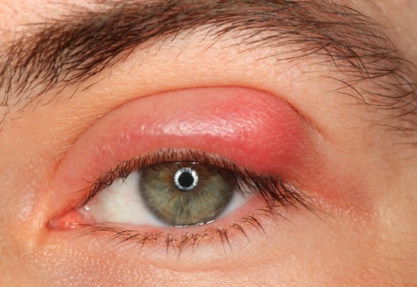 Болит глаз при моргании, нижнее веко, уголок глаза - что делать?