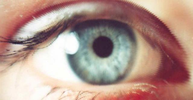 Миопия слабой степени - что это такое? Диагноз, лечение, упражнения