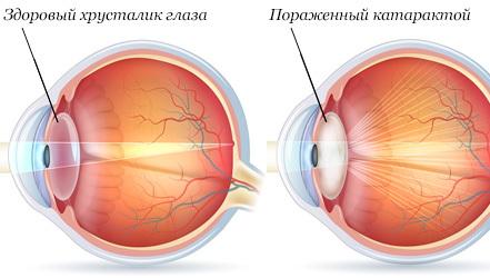 Что нужно есть при катаракте? Питание в пожилом возрасте, диета при заболевании глаз