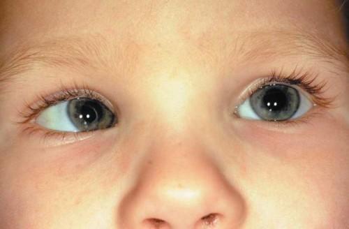 Косоглазие у новорожденных: почему косят глаза у грудничка?