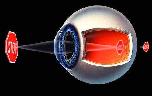 Рефракция глаза - что это? Что определяет физическую рефракцию глаза у детей