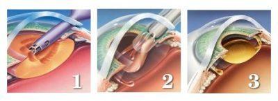 Операция при катаракте: как делают удаление катаракты, наркоз при операции