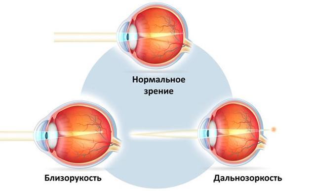 Как называется разное зрение на глазах, причины разного зрения глаз
