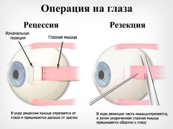 Операция по исправлению косоглазия - хирургическое лечение и коррекция у взрослых