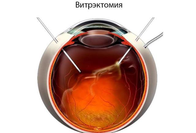 Радужные круги перед глазами, причины появления радужных кругов в глазах