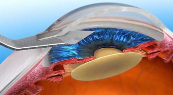 Катаракта - операция по замене хрусталика глаза, какие хрусталики лучше при катаракте