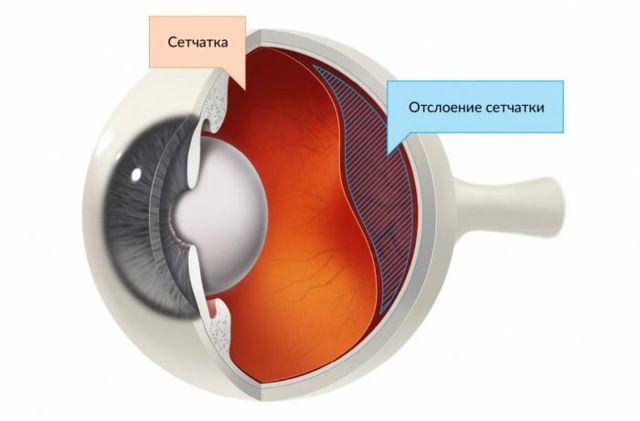Осложнения после операции катаракты глаз: отек роговицы, астигматизм, болит глаз, не видит