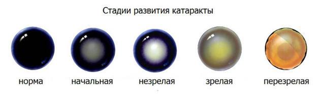 Стадии возрастной катаракты: начальная, незрелая катаракта, зрелая, перезрелая
