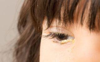 Выделения из глаза у взрослого, почему в глазах появляются белые или зеленые нитевидные выделения