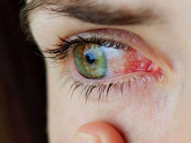 Конъюнктивит: лечение в домашних условиях у взрослых, как быстро вылечить его?