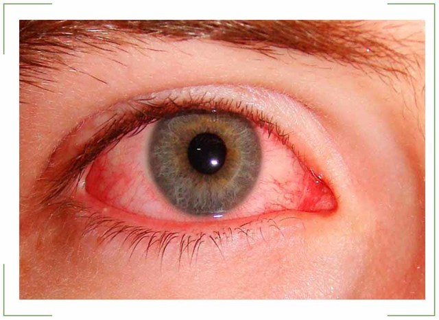 Конъюнктивит - сколько длится и лечится дней заболевание, почему долго не проходит