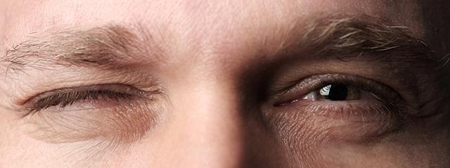 Дергается нижнее веко левого и правого глаза: что делать? Причины тика