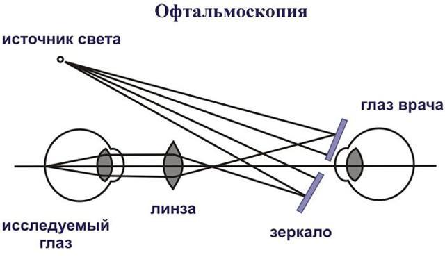 Боль в глазу при движении глазного яблока влево-вправо