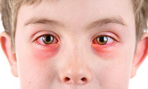 Конъюнктивит у ребенка: лечение, признаки, симптомы детского коньюктивита