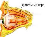 Ретробульбарный неврит зрительного нерва: лечение и симптомы