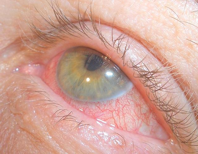 Воспаление радужной оболочки глаза - это ирит, хронический тип ирита
