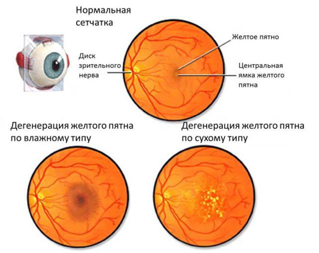Нечеткое и расплывчатое зрение, почему изображение расплывается
