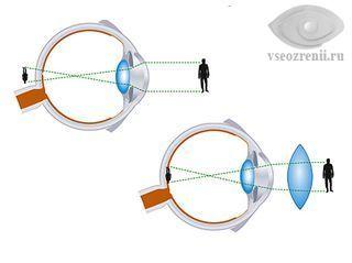 Лазерная коррекция зрения при дальнозоркости